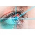 Контактні лінзи або лазерна корекція зору