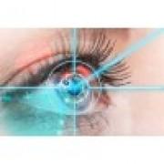 Контактные линзы или лазерная коррекция зрения