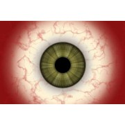 Краснеют глаза от контактных линз